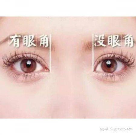 如何判断自己的眼睛是否需要开眼角?
