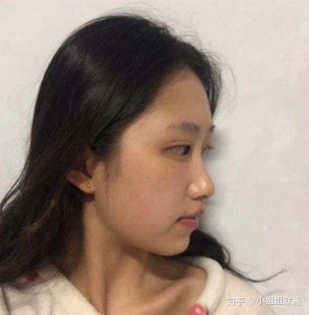 上海耳软骨隆鼻,术后效果分享