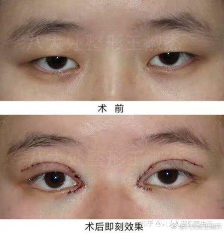 全切双眼皮+开眼角术后当时效果。