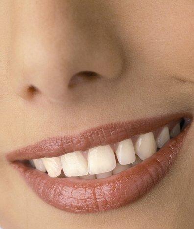 注意这些小细节 牙齿不白都不行