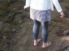 <b>小腿吸脂手术后,大家快来看我的美小腿</b>