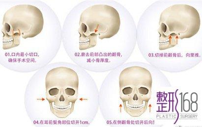 上海首尔丽格下颌角好不好
